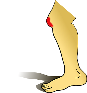 Verringerung der Verletzungsgefahr